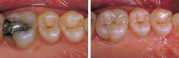 NYC-Prosthodontics-Ceramic-Inlay-02